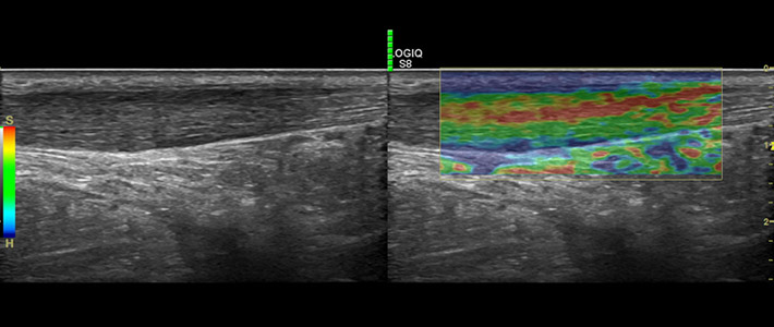 https://www.drakonaki.gr/files/files/slider-inner/elastography-tendon.jpg